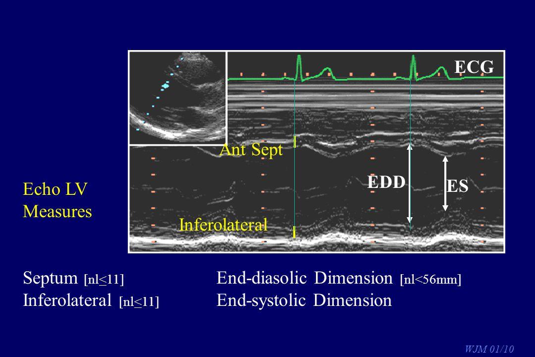 ECG Ant Sept. Inferolateral. EDD. ES. Echo LV. Measures. Septum [nl<11] End-diasolic Dimension [nl<56mm]